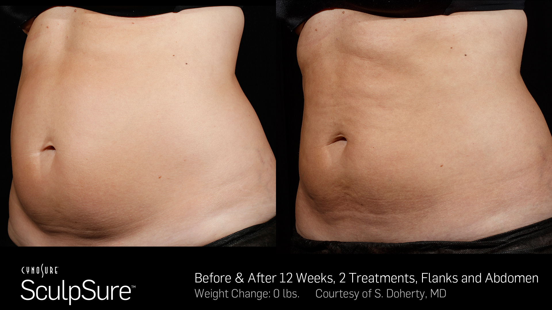 Before and after SculpSure treatments